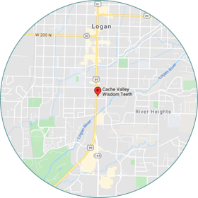cache-valley-wisdom-teeth-map-2